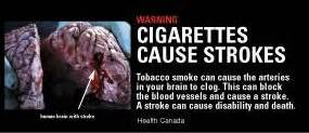 can second hand smoke cause hair loss picture 6
