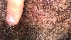 soothe itchy pubic hair picture 1
