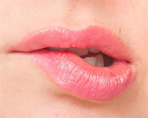 what can you do for burned lips picture 6
