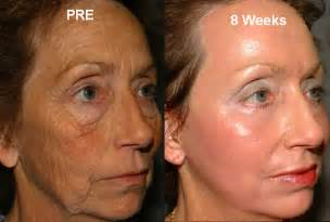 skin resurfacing picture 11