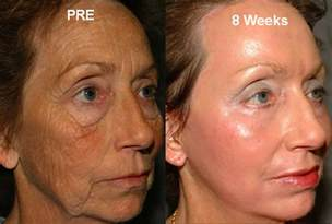 syringoma treatment in okc picture 2