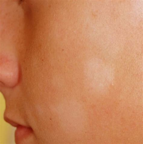 cause of white spots on skin picture 1