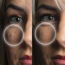 acne scar coverup picture 9