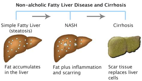fatty cirrhosis of the liver picture 6