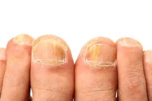 can candida cause toe nail fungus picture 18