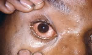 derma roll herpes symptoms picture 13