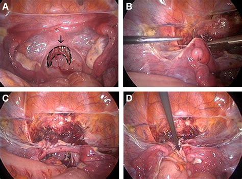vagina picture 5