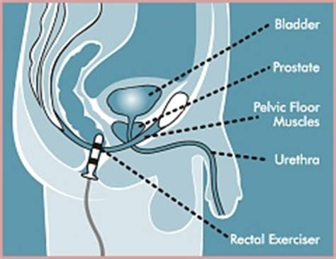 electrically stimulate the prostate picture 11