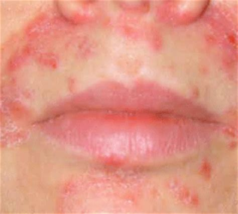acne around mouth area picture 18