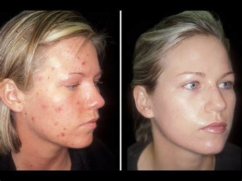 acne spray free picture 1