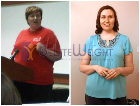 affordable weight loss surgery picture 2