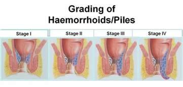 hemorrhoid symptoms picture 10