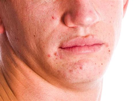 how long does it take tazorac to work for acne picture 4