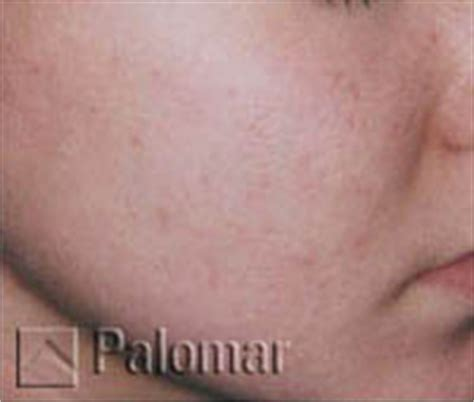 acne scar removal in bay area picture 14