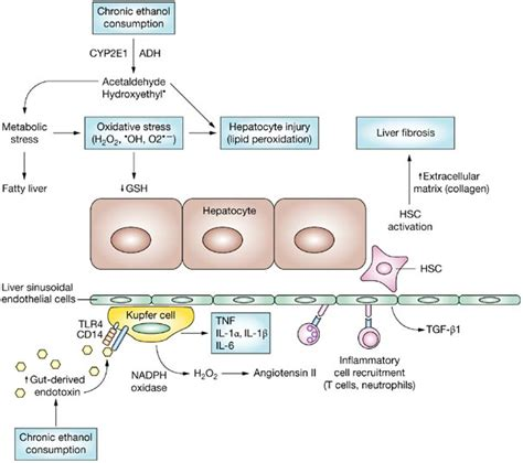 alcoholic liver disease picture 10