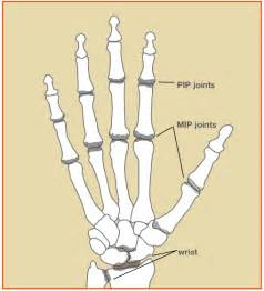 mp joint hand picture 1