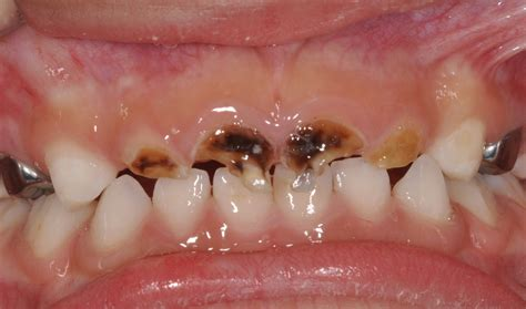 decaying teeth pictures picture 6