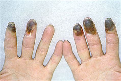 effects of smoking on your skin picture 9