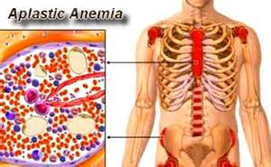 symptoms of bone marrow suppression picture 9