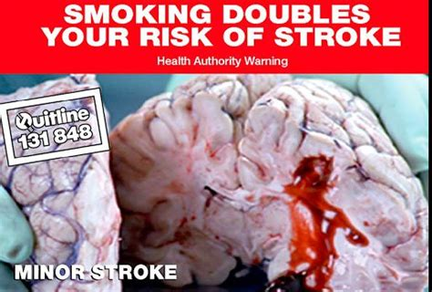 smoking stroke blood quit picture 1