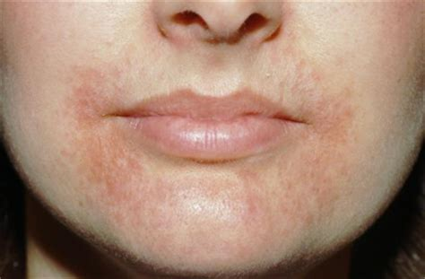 redness in face chapped lips fire around lips picture 15