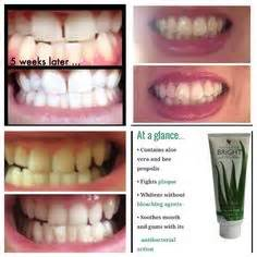 aloe vera to whiten teeth picture 3