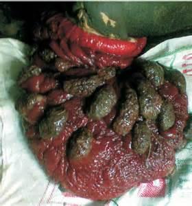 uteurus prolapse care plan picture 13