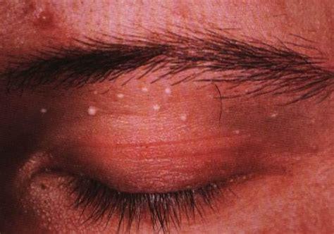 cystic acne, melasma, decreased libido picture 15