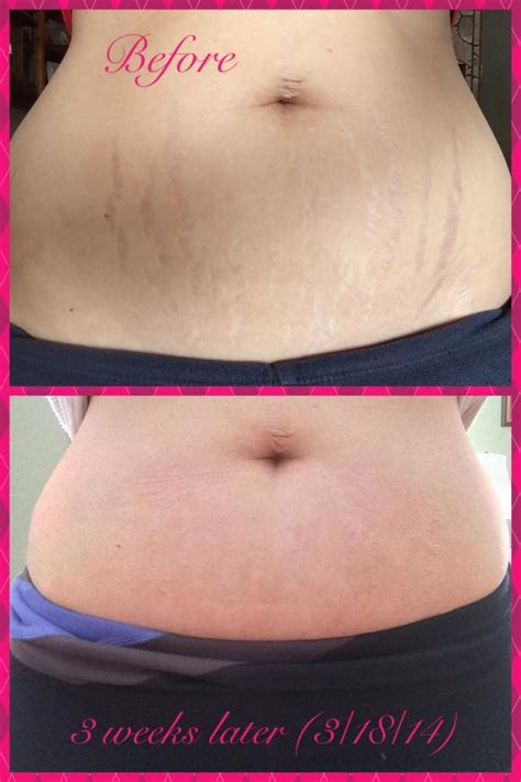 vicks for stretch marks before and after pics picture 5