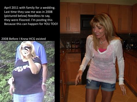 weight loss with hcg shots and picture 7