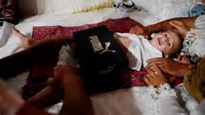 arabic male circumcision picture 3