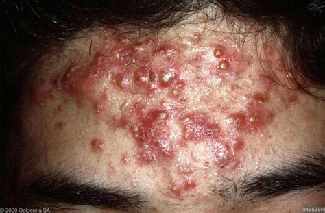 are pimples on the related to herpes picture 10