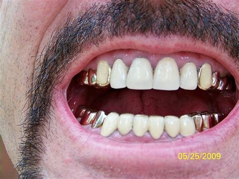 silver spring teeth crown picture 5