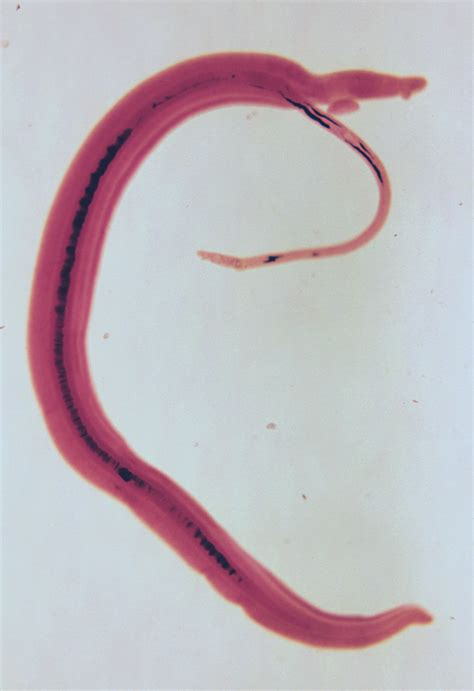 fasciola hepatica human liver fluke picture 10