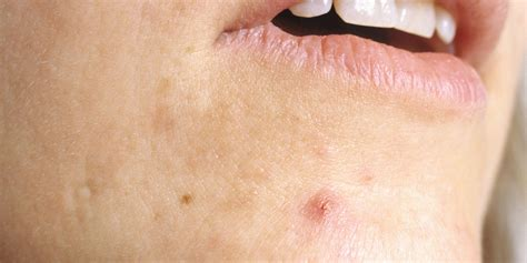 cystic acne picture 5