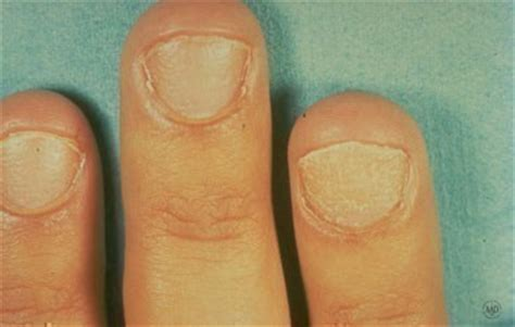 fatigue,dented fingernails,loss of body hair picture 9