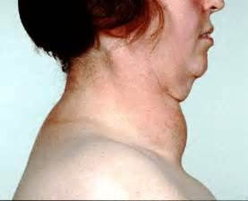 can taking too much thyroid cause goiter picture 3