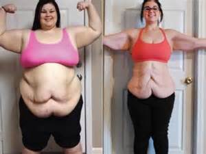 how to avoid extra skin from weight loss surgery picture 3