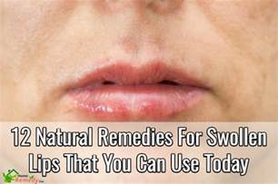 how to take swelling down of the lip picture 2