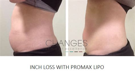 fat reduction injections gauteng picture 5
