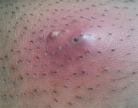 get rid of inflamed hair follicles ob vulva picture 1