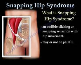 hip joint pops and has pain picture 2