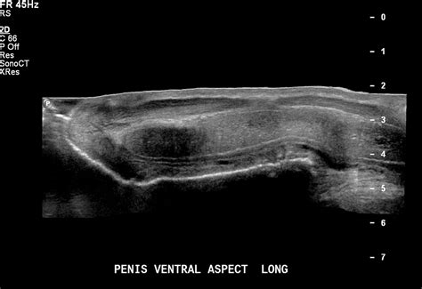 penis examination and ultrasound picture 6