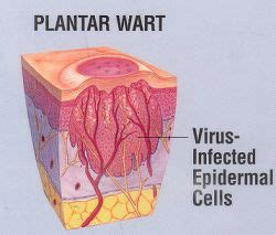 planters warts cured with desiccated liver picture 6
