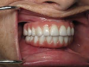 all teeth picture 5