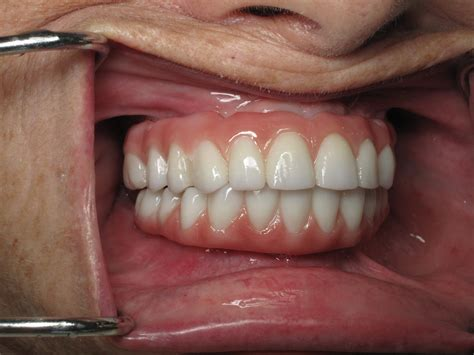 fix teeth picture 10