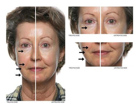 global anti aging picture 7