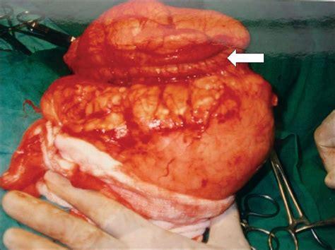 after surgery colon picture 14