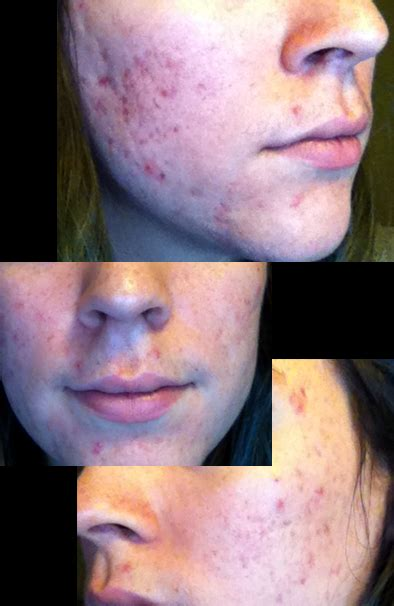 where i can found acnevir acne & redness picture 6