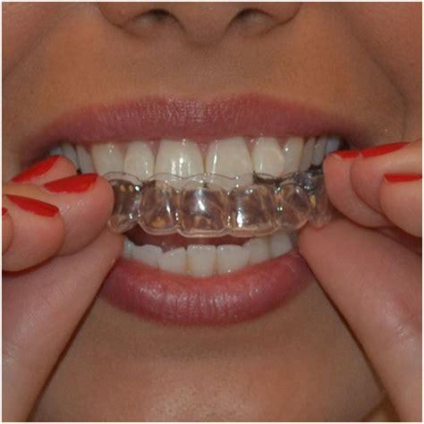 calcium teeth white picture 4